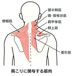 痛い 首 肩